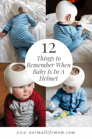 !2 Things To Remember When Baby Is In a Helmet. Helpful Tips for Surviving babies time in helmet due to a flat spot on babies head. #baby #parenting