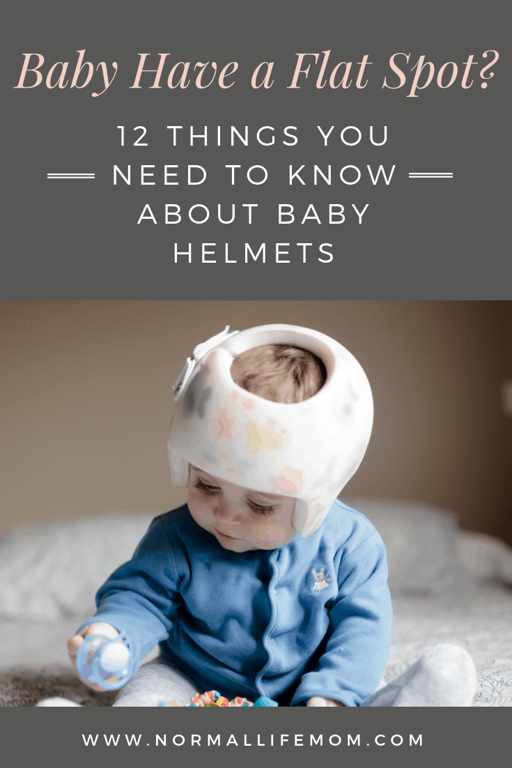 Does your baby have a flat spot? What to know about baby helmets